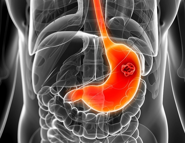 Potential Therapeutic Effects Of Curcumin On Stomach Cancer Discovered