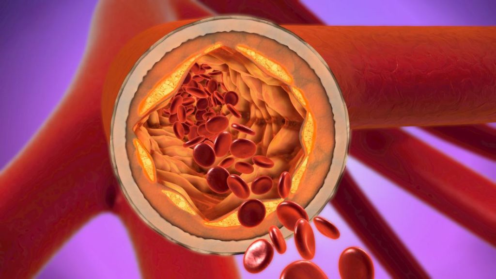 "Scientists Determine How ""Bad Cholesterol"" Goes Into Artery Walls"