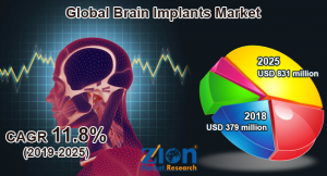 Brain Implants Market