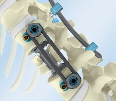 Global Spinal Implants Devices Market